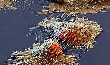 El psicoanálisis ante el enfermo de cáncer. Abordaje teórico-clínico.