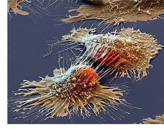 imagen El psicoanálisis ante el enfermo de cáncer